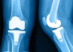 Operative Therapie bei Kinemedic - Praxis für physikalische, orthopädische und rehabilitative Medizin.
